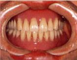保険適用の入れ歯イメージ