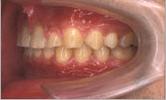 出っ歯矯正治療後