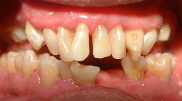 歯並びが悪いとどのようなことが起こるのでしょうか