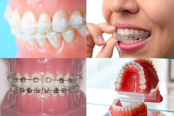 歯列矯正の種類