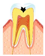 むし歯の第二段階