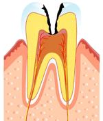 むし歯の第三段階