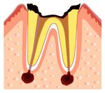 むし歯の第四段階